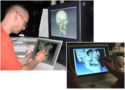 Προσομοίωση χειρουργικών επεμβάσεων στο πρόσωπο στην οθόνη του υπολογιστή